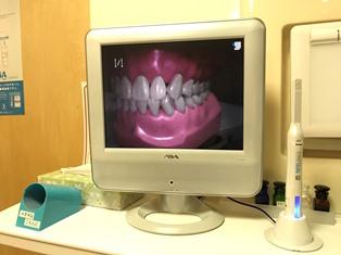 口腔内CCDカメラとモニタを設置